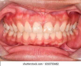 Intra-oral picture of teeth and gum in the mouth (oral care) when smile