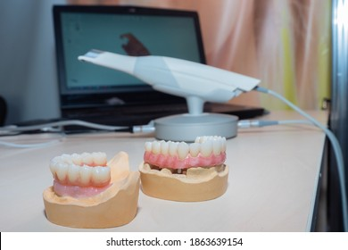 Intraoral scanner next to dentures. Intraoral scanner in the orthodontist's office. Concept - modeling of dentures. Device for creating a model of a denture. Sale of an intraoral scanner.