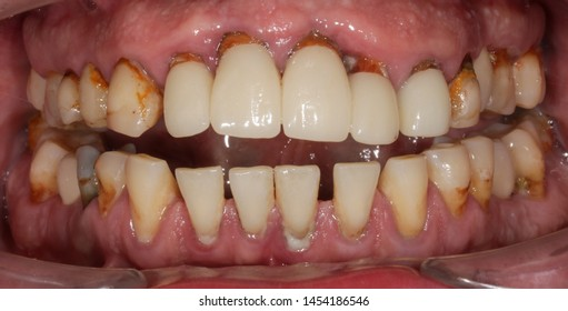 Intraoral view of periodontal gum disease