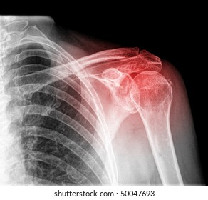 intrinsic shoulder pain isolated
