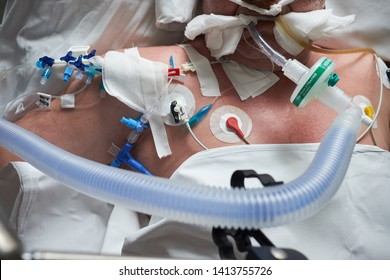 Intubated patient in crirtical stance, central venous catheter installed in jugulares vena