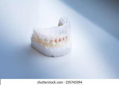 Invisalign, invisible plastic teeth aligner on a dental plaster mold
