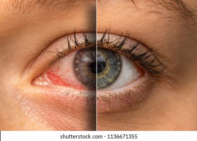 Irritated eye before and after using eye drops