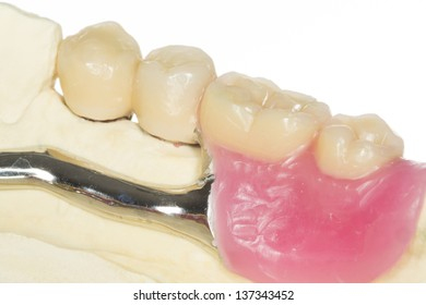 Telescopic denture images stock photos & vectors shutterstock