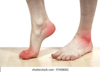 isolated disease of the heels