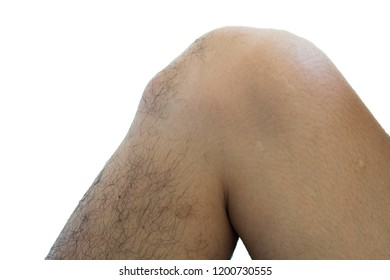 isolated knee osgood schlatter disease