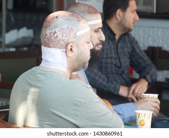 Istanbul, Turkey. May 12, 2019. Hair Transplant Patients.