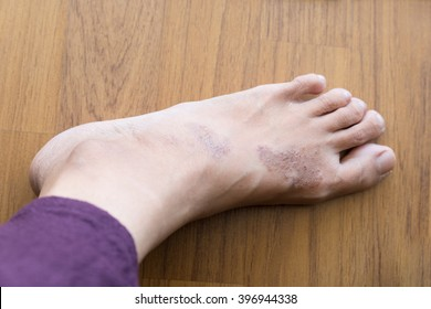 itchy rash eczema on woman skin foot