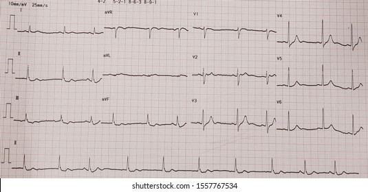 J wave syndrome. Sinus arrest with junctional escape rhythm.
