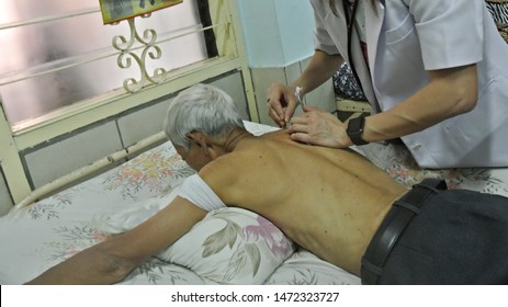 Jakarta, Indonesia - August 2019 : An acupuncturist punctures some acupunture needles on a patient's back.
