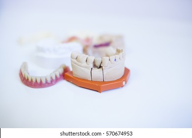 jaw on table.white background.teeth prosthesis on white table. teeth