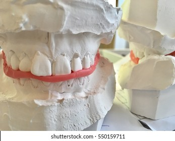 Jaw orthodontic model