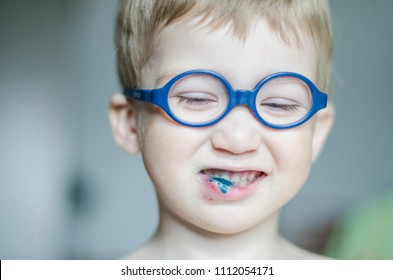 June, 2018 - Arkhangelsk. A child in glasses with a broken lip