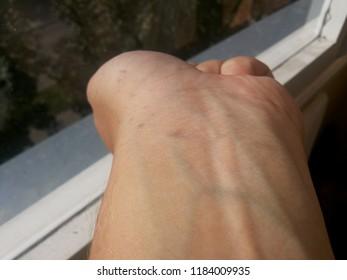junkie veins on dudes hand