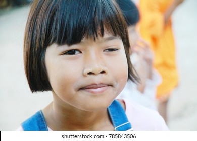Kantharalak, 30 Dec,2017: A Children girl Congenital ptosis of Upper eyelid left eye ,Kantharalak Sisaket,Thailand