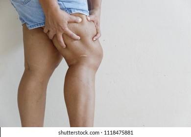 Keloid, cellulite, Varicose veins on the skin leg of obese women.