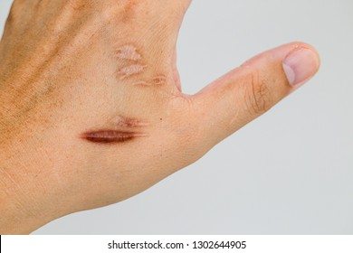 Keloid scar (Hypertrophic Scar) on man hand skin after accident. keloidal scar on wrist skin cause by surgery in car accidental , is a formation of a type of scar at the site of a healed skin injury.