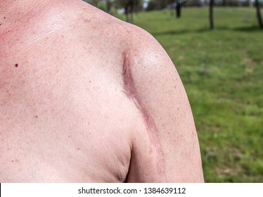 Keloid scar on the body of a man large