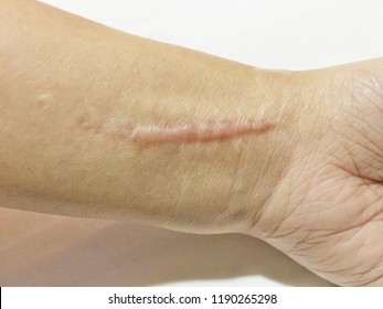 keloidal scar on wrist skin cause by surgery in car accidental , is a formation of a type of scar at the site of a healed skin injury. Hypertropic scar on surgical incision sites with white background