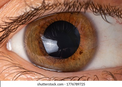 Keratoconus of eye, 4th degree. Contortion of the cornea in the form of a cone, deterioration of vision, astigmatism. Macro close up