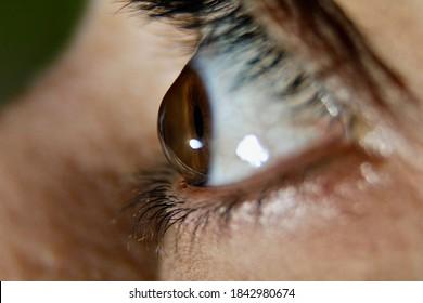 Keratoconus eye, macro eyes, last stage keratoconus