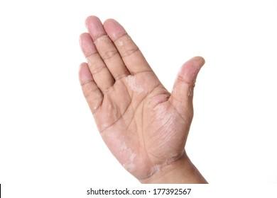 Keratolysis exfoliativa congenita  skinflay  hand