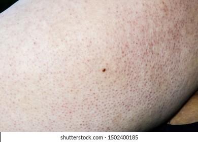 Skin Bump Images, Stock Photos & Vectors   Shutterstock