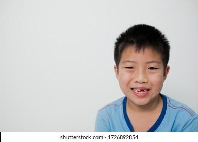 kid broken tooth, boy smiling