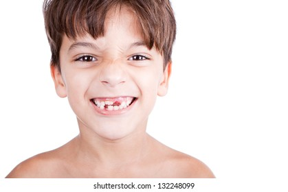 Kid or child or boy showing his missing milk teeth isolated on white background.