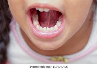 Kid with crooked teeth