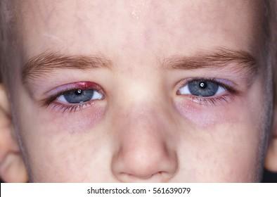 kid eye with sty