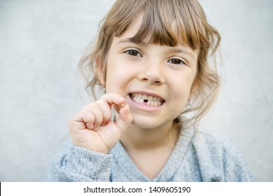 The kid had a baby tooth. Selective focus.