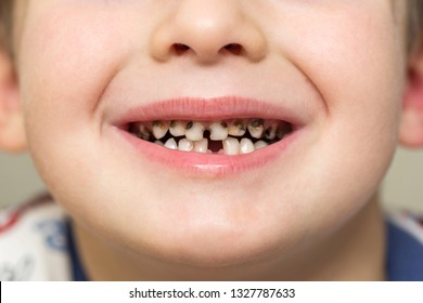 Kid patient open mouth showing cavities teeth decay. Close up of unhealthy baby teeth. Dental medicine and healthcare - human patient open mouth showing caries teeth decay