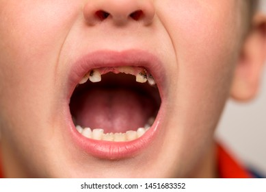 Kid patient open mouth showing cavities teeth decay. Close up of unhealthy baby teeth. Dental medicine and healthcare.