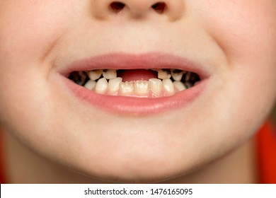 Kid patient open mouth showing cavities teeth decay. Close up of unhealthy baby teeth. Dental medicine and healthcare - human patient open mouth showing caries teeth decay.