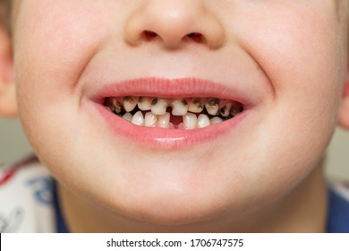 Kid patient open mouth showing cavities teeth decay. Teeth health care.