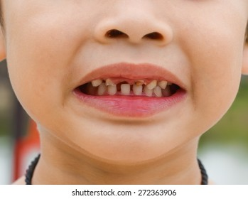 kid patient open mouth showing cavities teeth decay