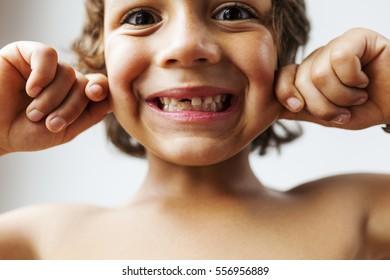 kid showing missing teeth