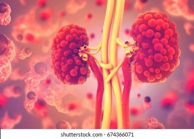 Kidney disease. 3d illustration