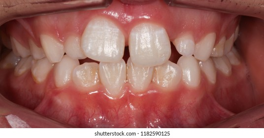Kins,Transition From Milk Teeth to Permanent Teeth