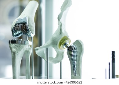 Knee and hip prosthesis