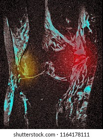 knee injury, MRI