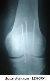 Knee joint x-ray front image