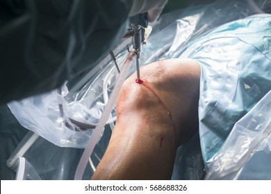 Knee keyhole surgery hospital arthroscopy operation medical procedure in emergency room operating theater.