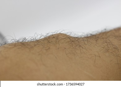The knee of a man with Osgood-Schlatter Disease.