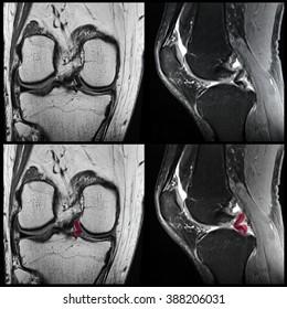 Knee, meniscal tear, MRI