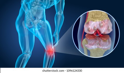 Knee pain Attack, man suffering from knee. 3D illustration