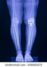 knee prosthesis, x ray image