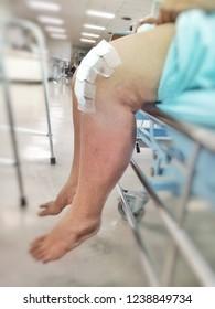 Knee surgery, Medical treatment of knee injuries, Knee injury