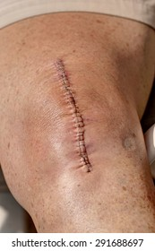Knee surgery staple wound on leg of recovering woman